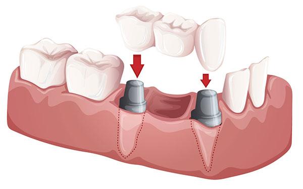 dental bridges dallas
