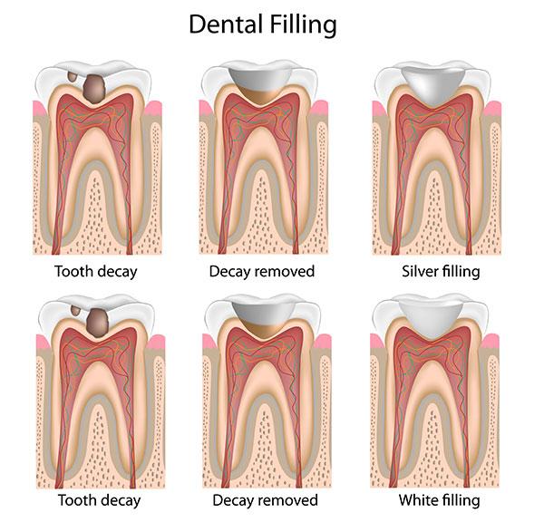 Natural & Tooth-Colored Dental Fillings Rio Rancho