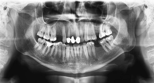 Digital X-rays Rio Rancho